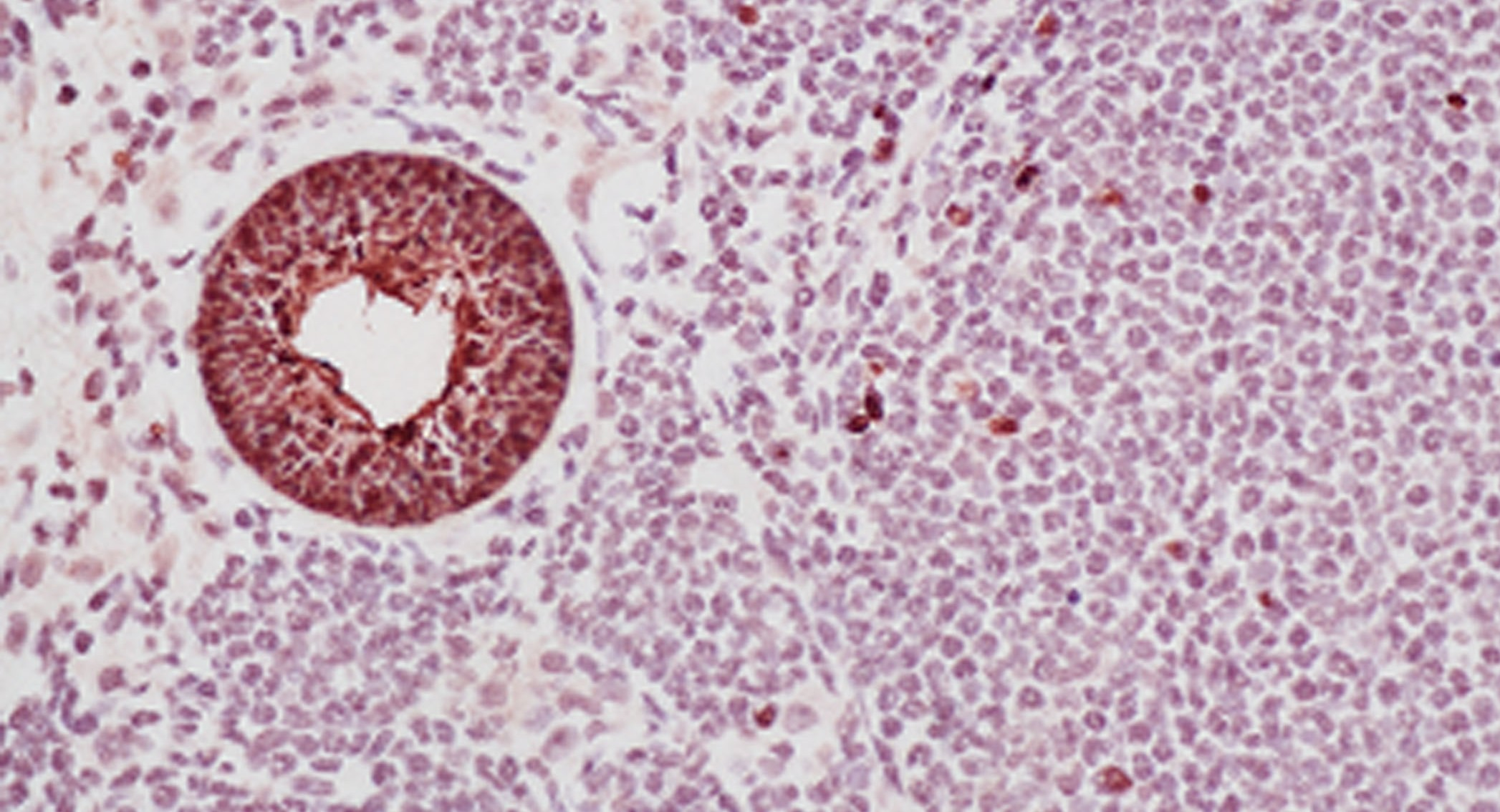 Valley Fever spherule in lung